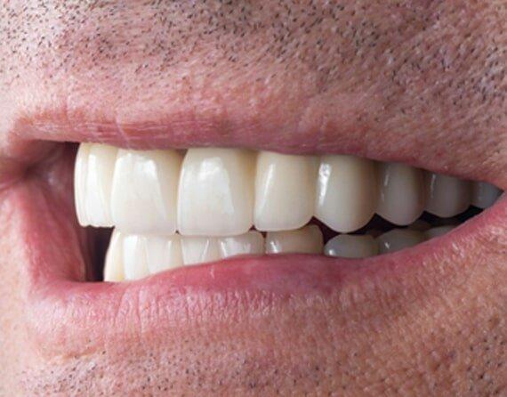 Best Oral Surgeon Charlotte NC